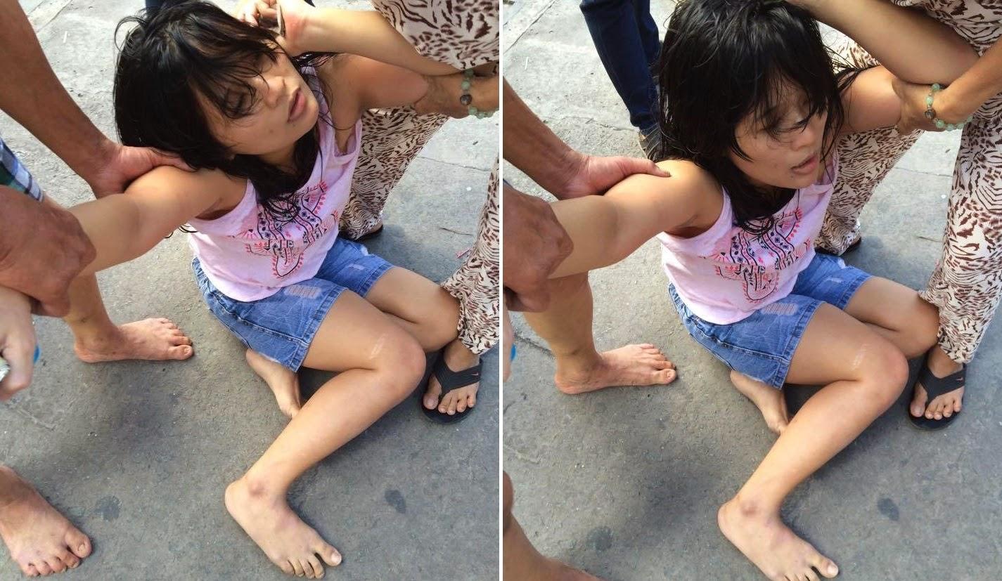 Blogger Nguyễn Hoàng Vi bị côn an trả thù man rợ vì các hoạt động vinh danh ngày Quốc tế Nhân quyền
