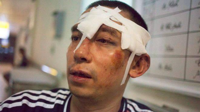 Các nhà hoạt động bị công an tấn công trước ngày phán quyết về đường lưỡi bò