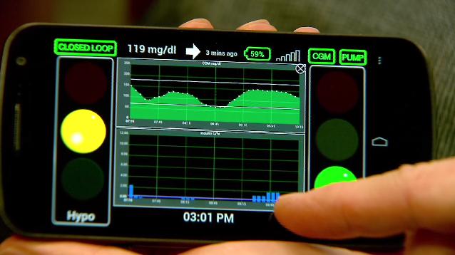 Chế máy điều hòa insulin cho người bệnh tiểu đường