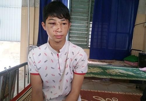 Trưởng công an xã đánh một học sinh nhập viện