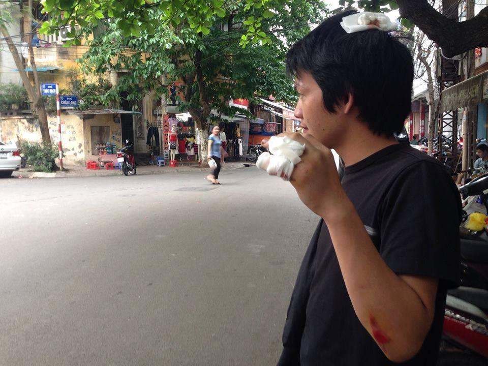 Mật vụ Hà Nội hành hung người biểu tình vì cây xanh