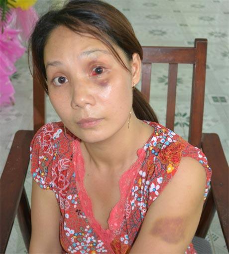 20,000 vụ bạo hành xảy ra tại Việt Nam mỗi năm