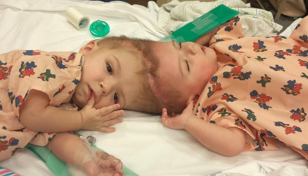 2 bé dính đầu bình phục nhanh chóng sau ca mổ