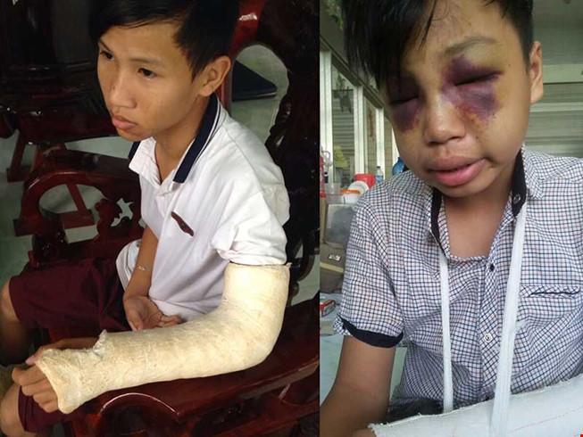 Công an Bình Phước dùng gậy đánh học sinh 15 tuổi tử vong