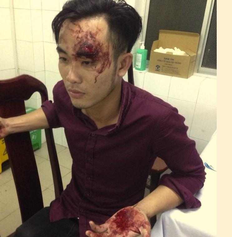 Cảnh sát cơ động Cần Thơ đánh dân chảy máu đầu trong ngày đầu năm 2017