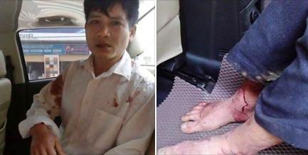 Một thành viên Hội Đồng Liên Tôn Việt Nam bị công an đánh có thể đến gãy chân