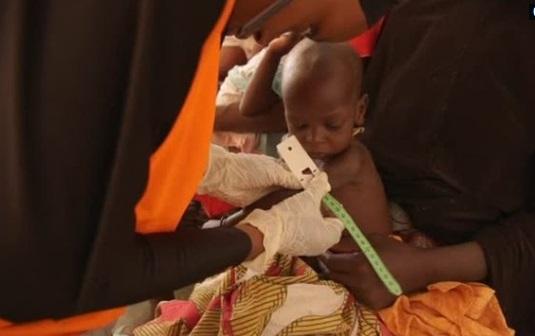 1.4 triệu trẻ em Châu Phi nguy cơ chết đói trong vòng 6 tháng tới