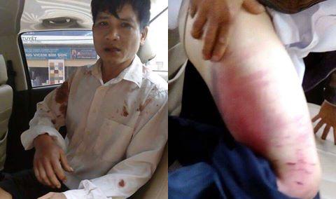 Front Line Defenders lên án vụ công an hành hung mục sư Nguyễn Trung Tôn