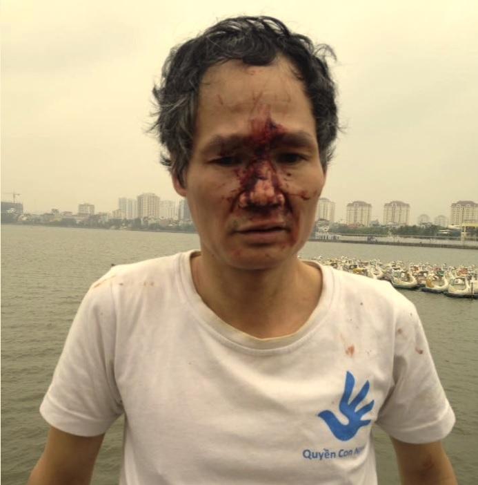 Dư luận viên giả dạng côn đồ hành hung hai nhà hoạt động tại Hà Nội