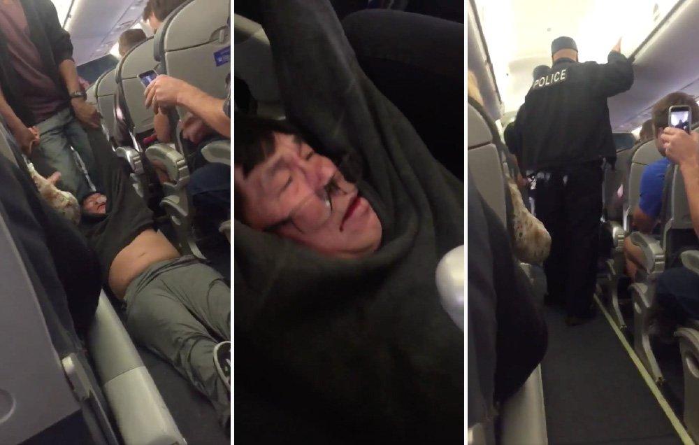 United Airlines bị chỉ trích dữ dội vì lôi một bác sỹ người Mỹ gốc Việt ra khỏi máy bay