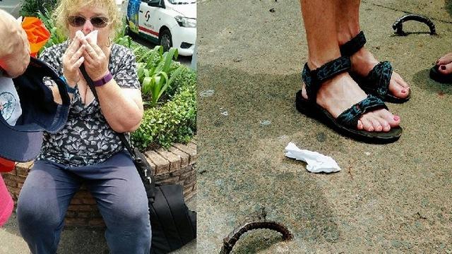 Nữ du khách ngã dập mặt ở Sài Gòn được đền 1,000 Mỹ kim