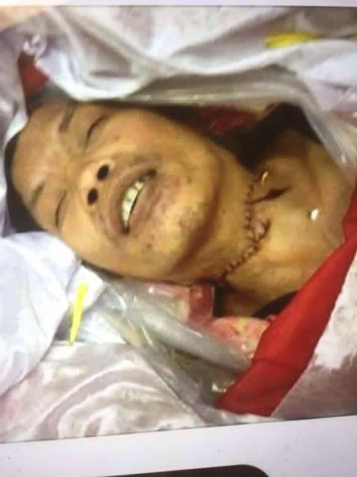 Một tín đồ Phật Giáo Hoà Hảo bị cắt cổ chết trong đồn công an