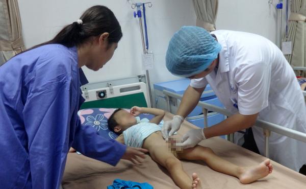 Hàng chục trẻ bị sùi mào gà sau khi cắt bao quy đầu ở Hưng Yên