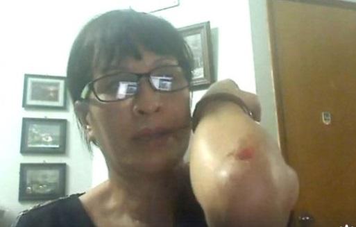 Nhà nữ hoạt động Sương Quỳnh bị côn đồ tấn công sau khi dự lễ tưởng niệm Lưu Hiểu Ba