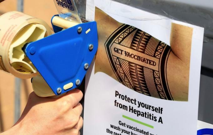 Cảnh báo dịch viêm gan A đang lan truyền ở San Diego và Los Angeles