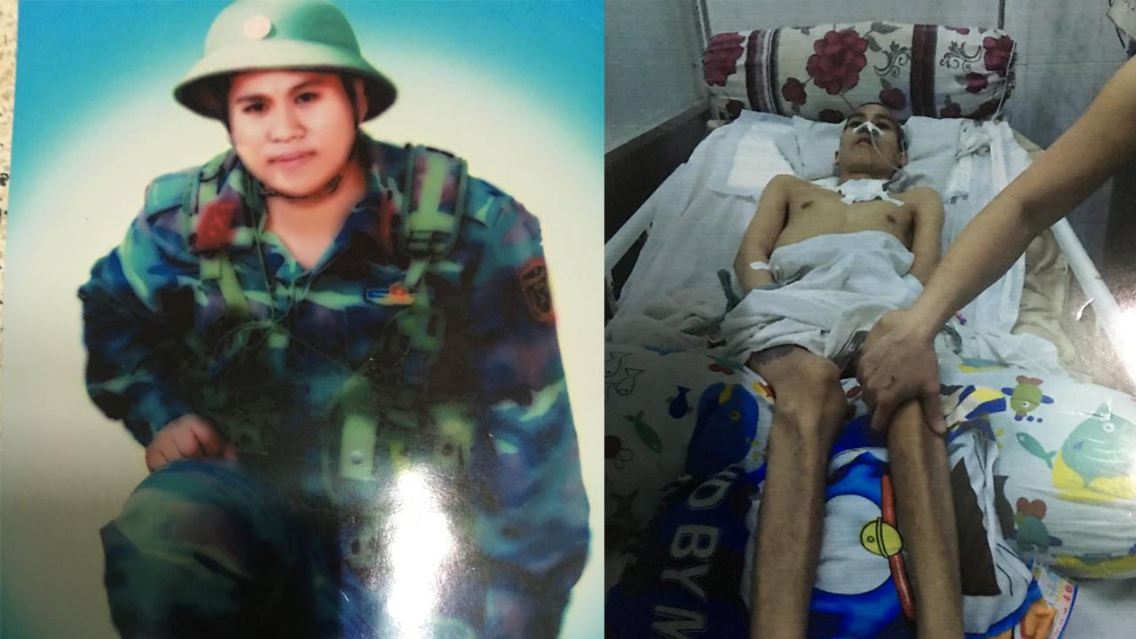 Một thanh niên đi nghĩa vụ quân sự bị cấp trên đánh tàn phế