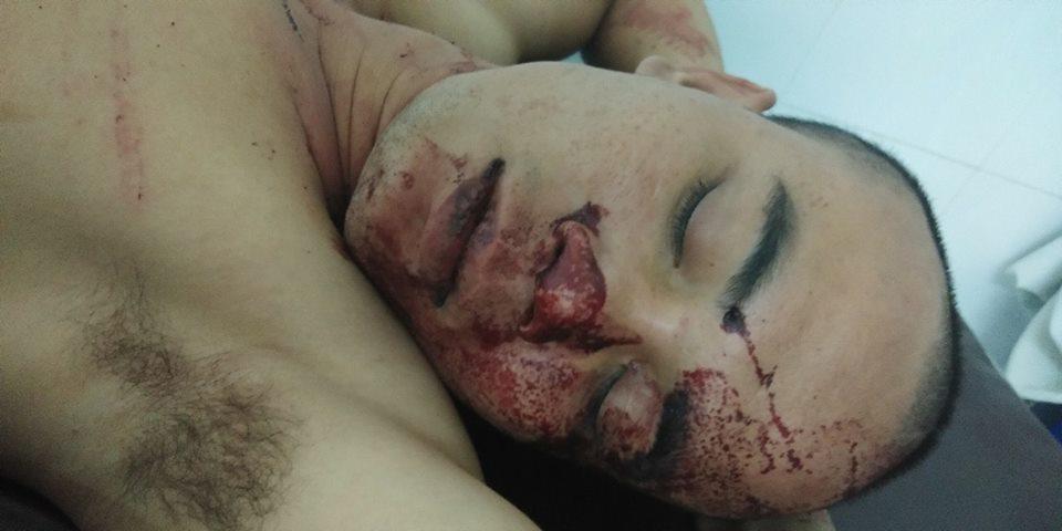 Thanh niên nhập viện cấp cứu sau khi 'tự va vào dùi cui và súng' của công an
