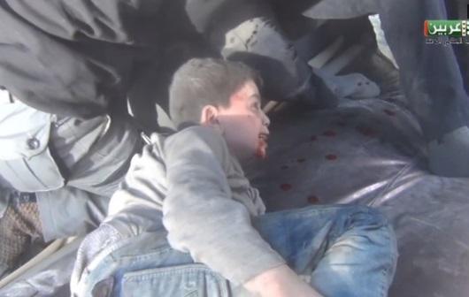 Trẻ em trở thành nạn nhân trong các đợt oanh kích của quân đội Assad