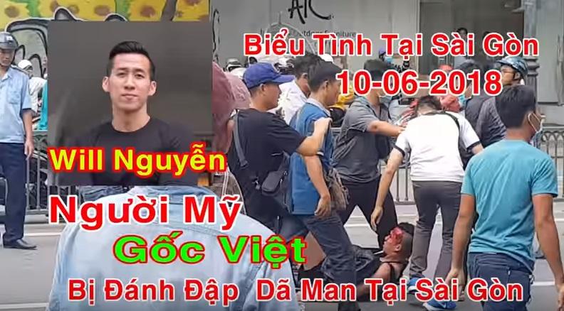 Một thanh niên Việt kiều Mỹ bị đánh đập và bắt giam trong cuộc biểu tình 10/06 ở Sài Gòn