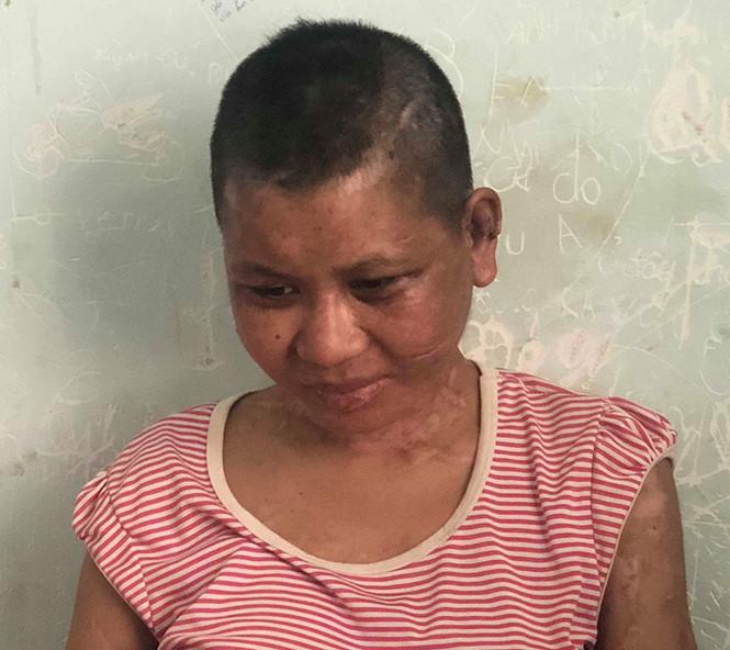 Cô gái dân tộc thiểu số đi làm thuê bị chủ tra tấn dã man ở Gia Lai
