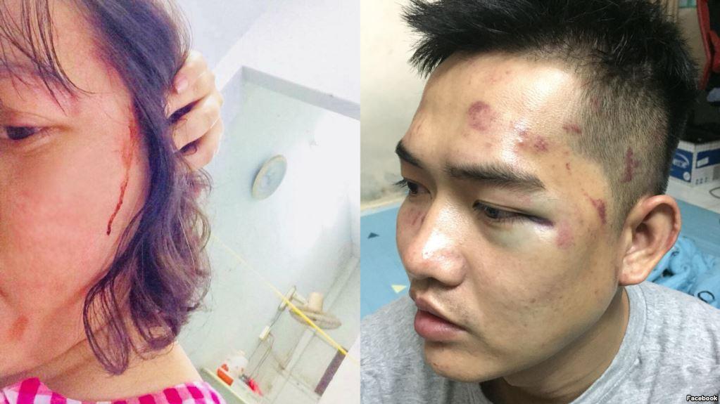 Human Rights Watch cảnh cáo nạn hành hung blogger và nghệ sĩ trở thành 'thông lệ mới ở Việt Nam'