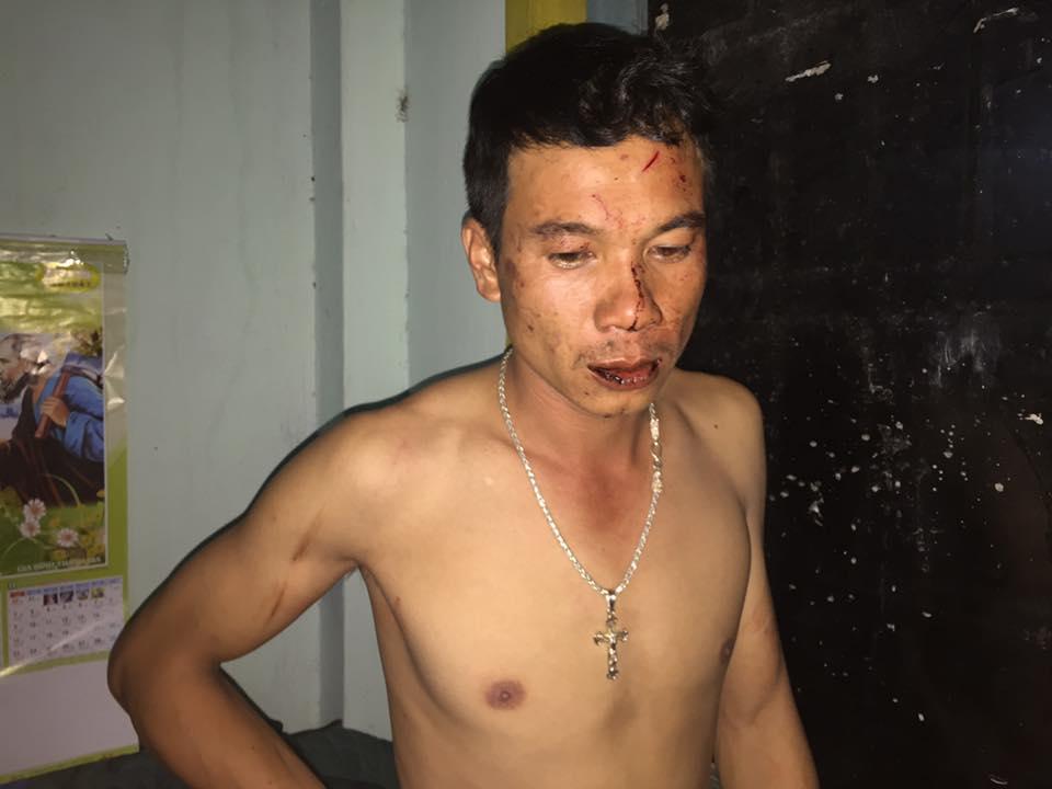 Nhà hoạt động Phạm Thế Lực bị mật vụ chém tại nhà riêng
