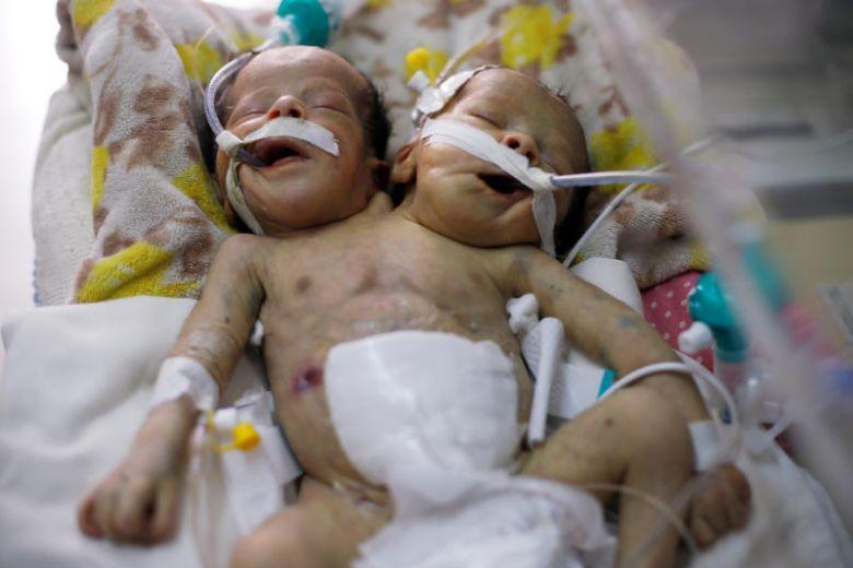 Một cặp song sinh dính liền sinh ra tại Yemen cần được điều trị tại ngoại quốc để sống sót