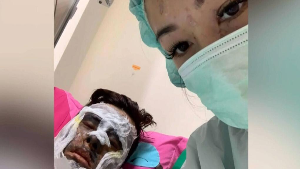 Thêm chi viết về hai người Canada gốc Việt bị tấn công acid tại Việt Nam