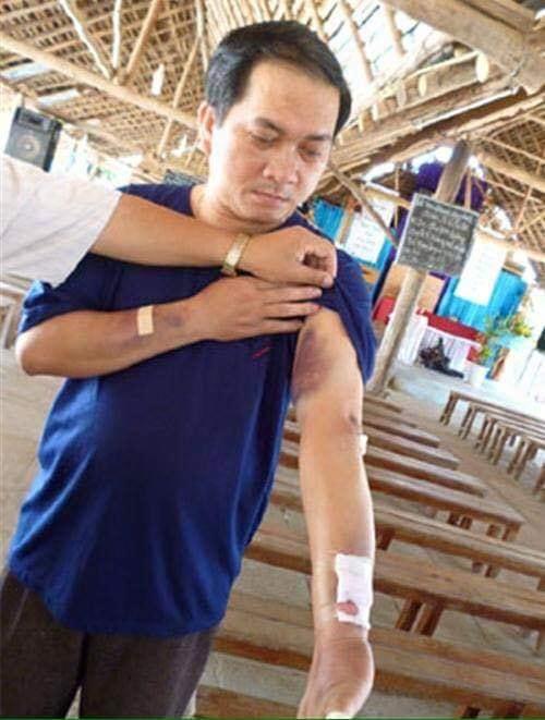 Một linh mục ở Kon Tum bị đánh đập bởi côn đồ được cộng sản bảo kê