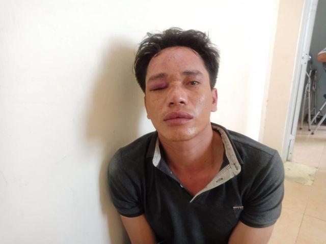 Ăn trộm ở Sài Gòn chỉ mặt nói công an là cướp