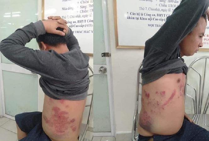 Một phụ nữ bị đánh, 5 nguoi khác bị bắt giam vì phản đối BOT Bắc Thăng Long – Nội Bài