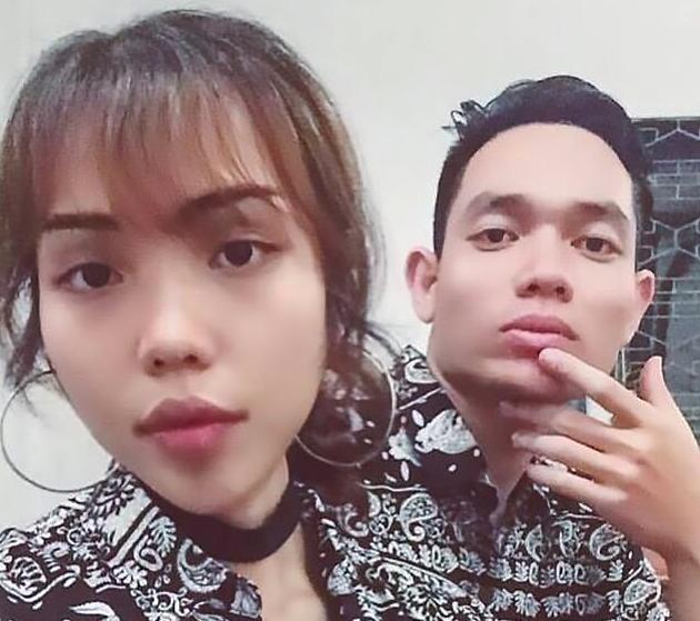 Cô gái 24 tuổi bị biến dạng suốt đời sau khi bị hôn phu tạt axit vì ghen tuông