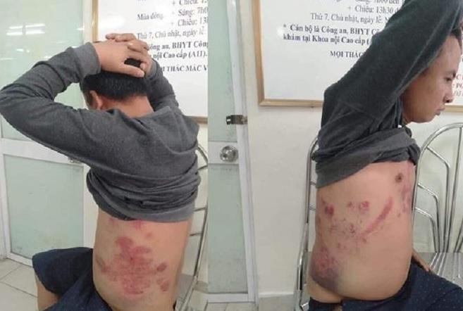 Phiên toà xử nhà hoạt động chống BOT bẩn Hà Văn Nam bị hoãn