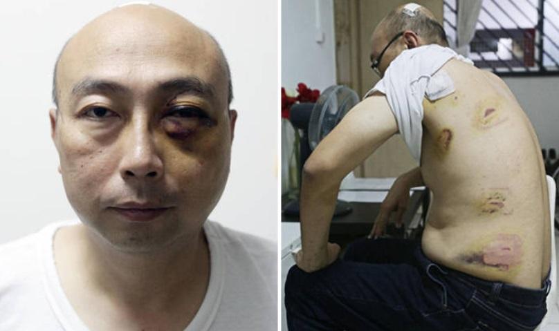 Vợ Việt Nam hành hung và đâm chồng Singapore vì nghi chồng ngoại tình