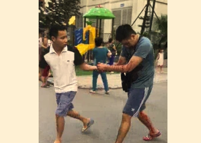Nổ hộp quà ở Hà Nội, nhiều người bị thương