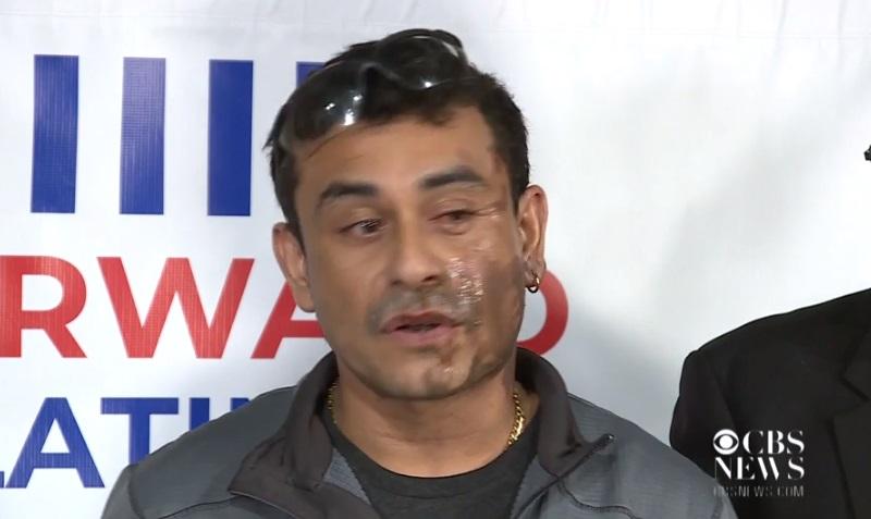 Nghi can tạt acid vào một người gốc Hispanic bị buộc tội kỳ thị chủng tộc