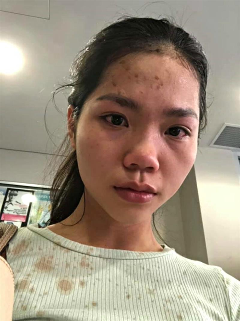 Hai chị em Việt Nam bị tấn công vì đeo khẩu trang ở Úc