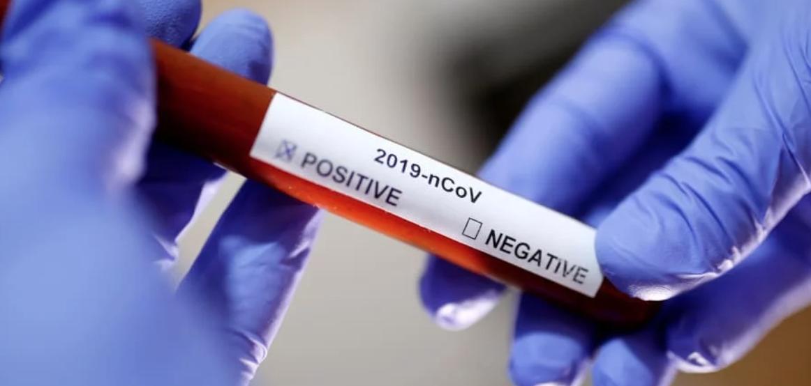 New York cùng 4 tiểu bang khác tại Hoa Kỳ tuyên bố tình trạng khẩn cấp do bùng phát dịch coronavirus tại Hoa Kỳ