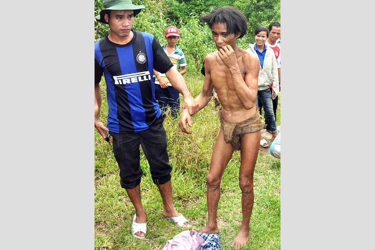 """""""Người rừng"""" Việt Nam qua đời sau 8 năm trở về thế giới văn minh"""